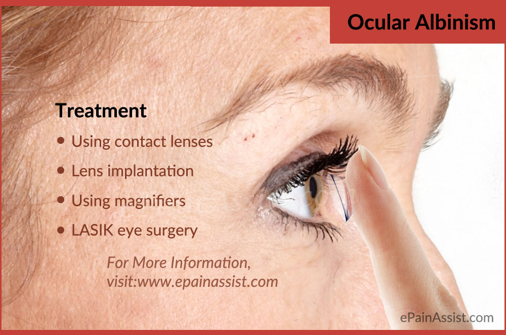 Treatment for Ocular Albinism