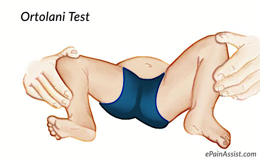 Orthopedic Tests for Hip and Pelvis-Ortolani Test or Ortolani Maneuver!