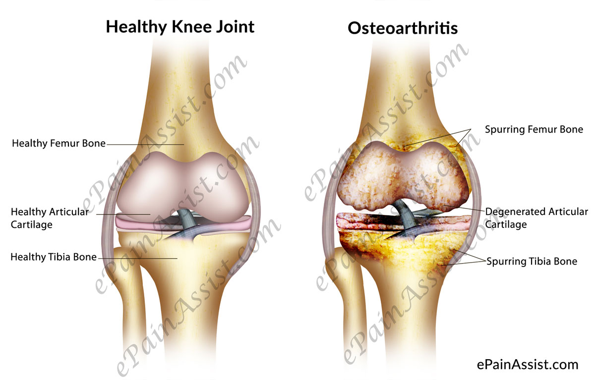 What is Osteoarthritis of the Knee & What are its Causes, Signs ...