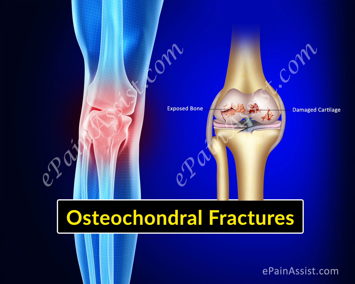 Osteochondral Fractures of Knee or Articular Cartilage Injury