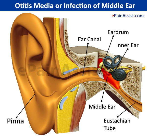 Otitis Media or Infection of Middle Ear