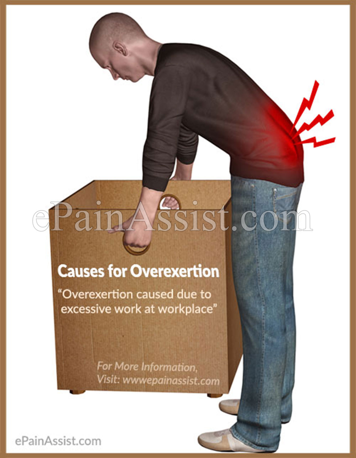 Overexertion: Signs, Symptoms, Causes, Treatment, Prevention