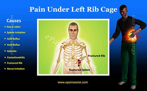 Pain Under Left Rib Cage|Treatment|Causes|Diagnosis