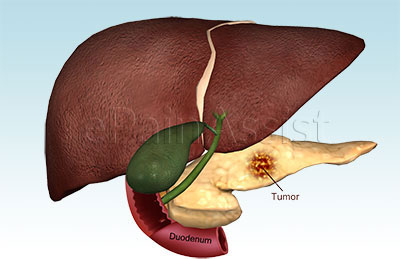about the liver qi stagnation treatment