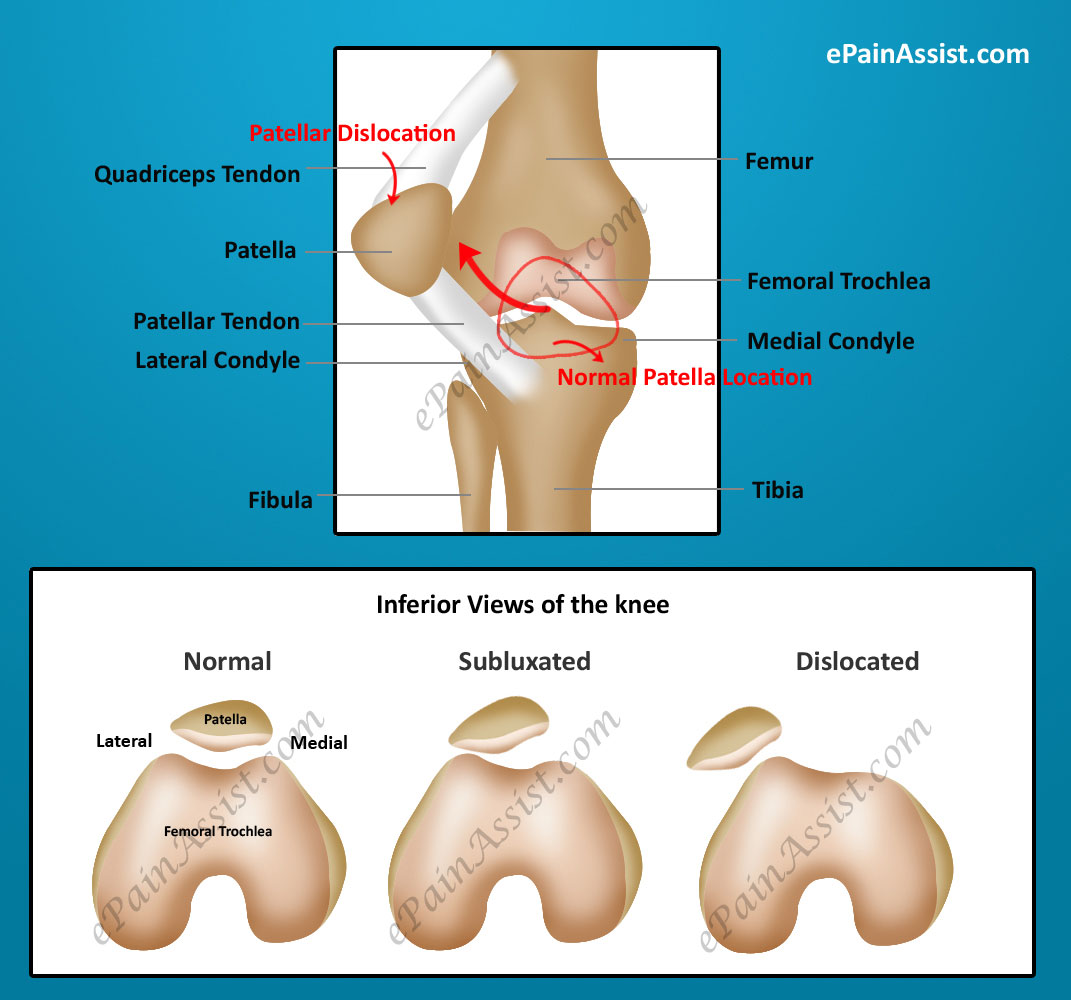 Patellar Dislocation or Dislocated Kneecap