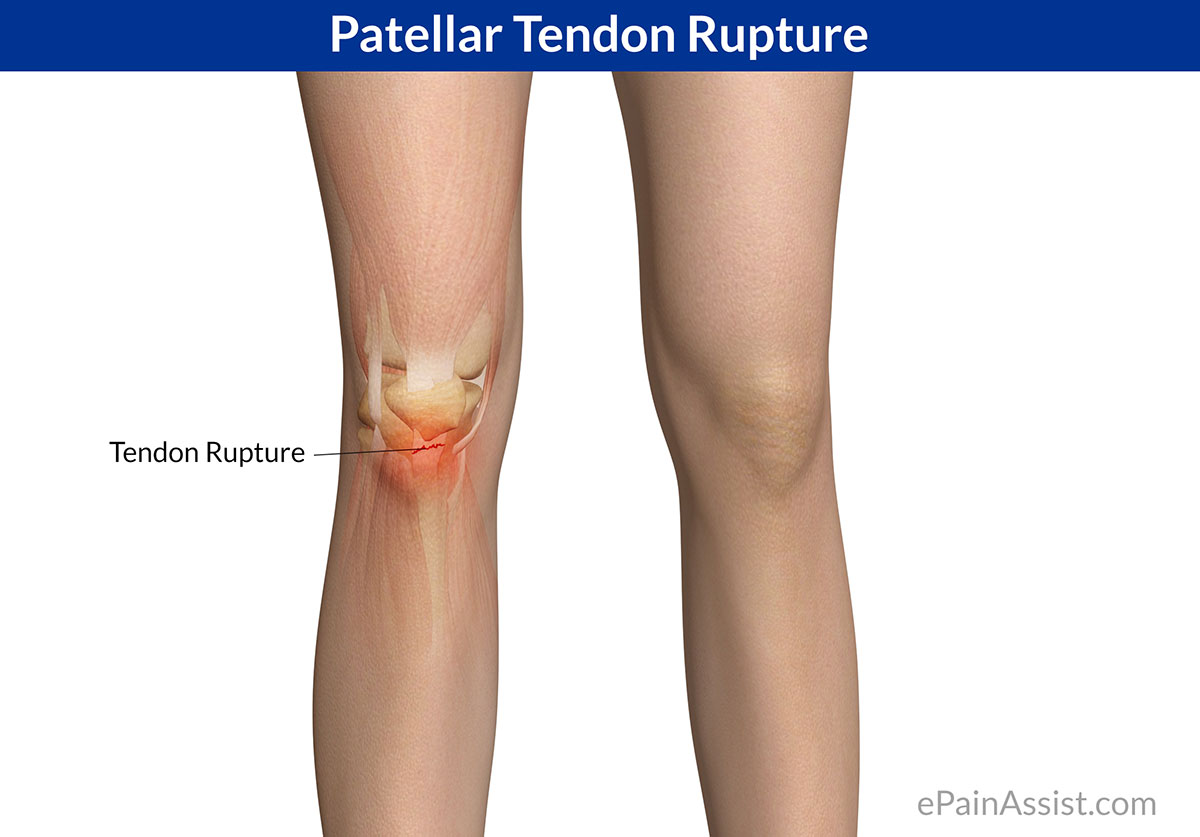 Patellar Tendon Rupture or Patellar Tendon Tear
