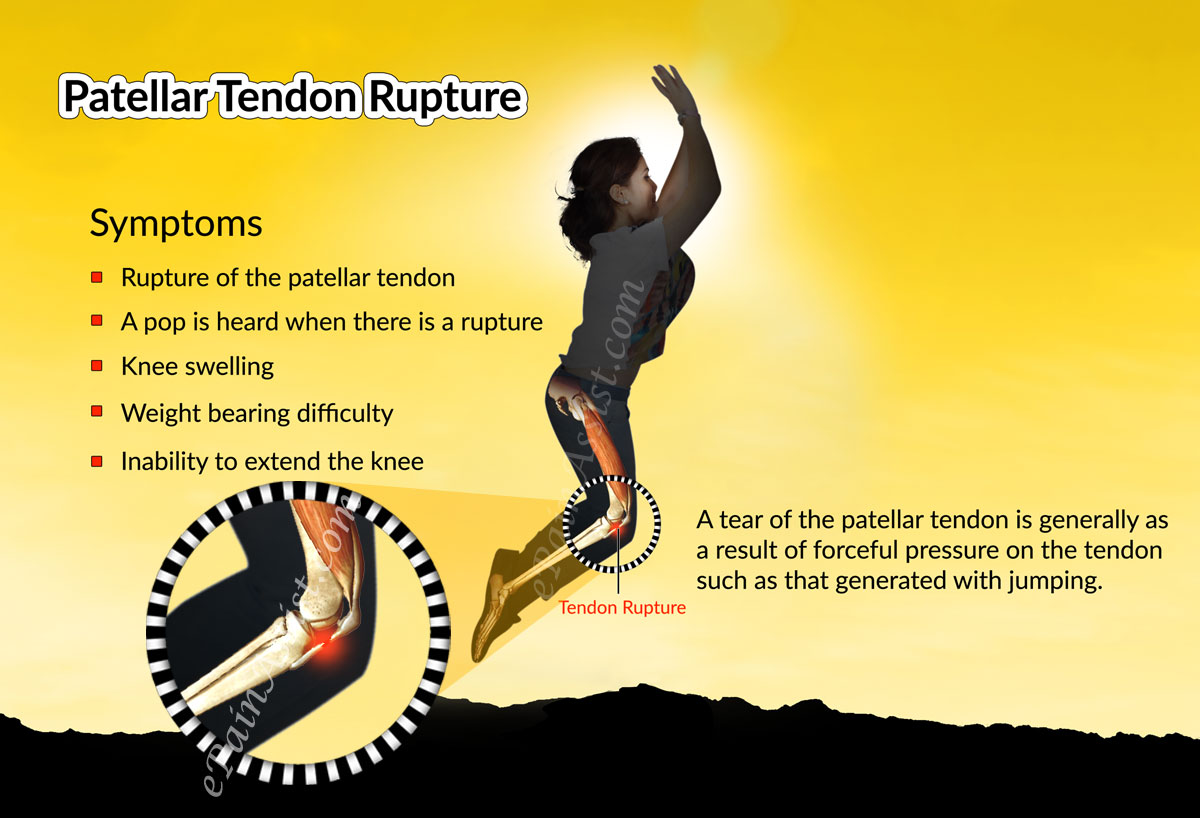 Symptoms of Patellar Tendon Rupture or Patellar Tendon Tear