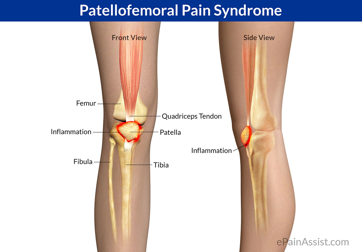 https://www.epainassist.com/sports-injuries/knee-injuries/patellofemoral-pain-syndrome-pfps