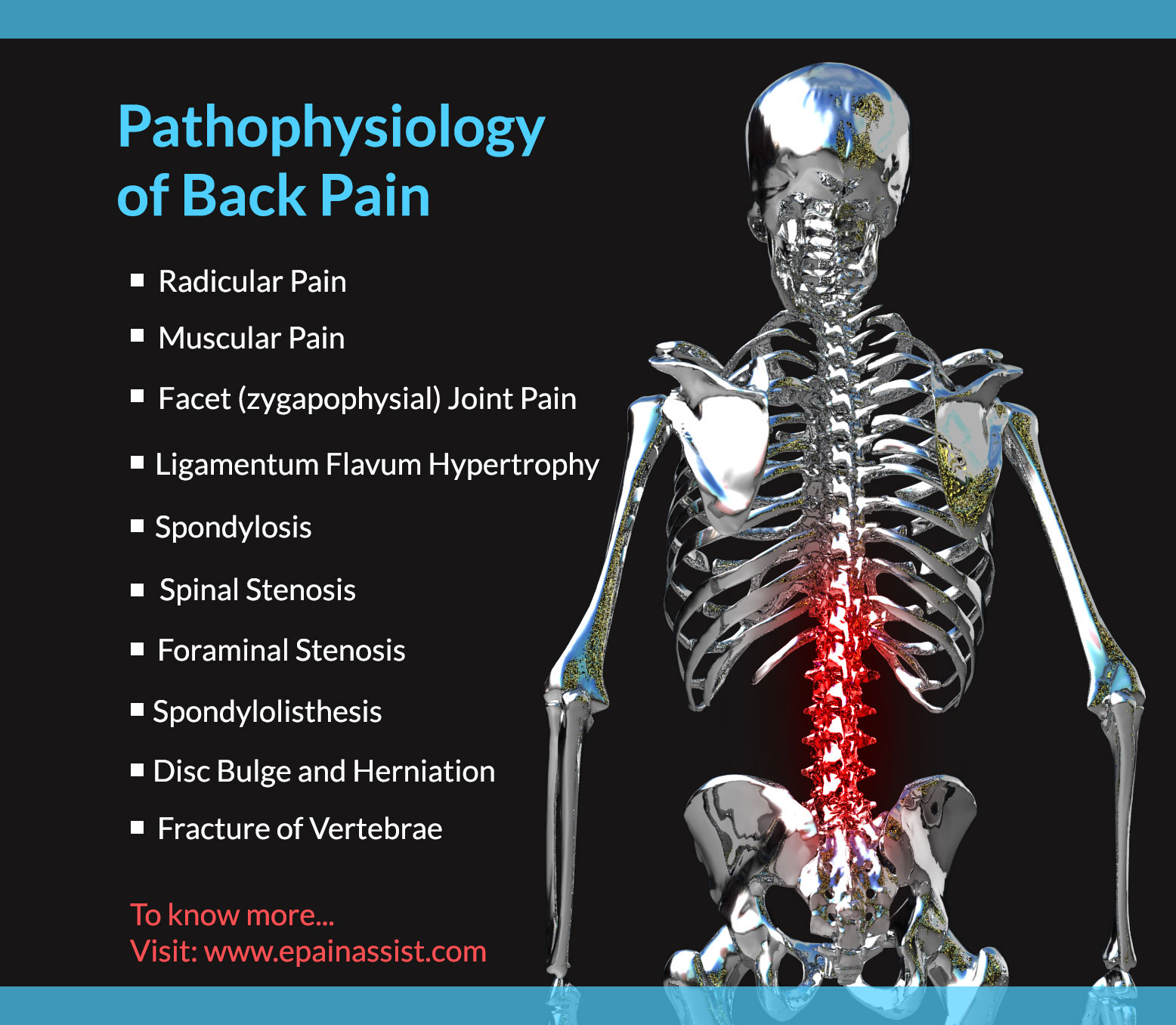 Pathophysiology of Back Pain or Backache