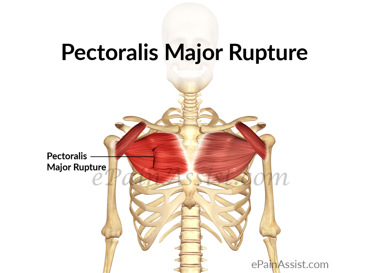 Pectoralis Major Rupture: Treatment, Exercise, Prevention, Causes