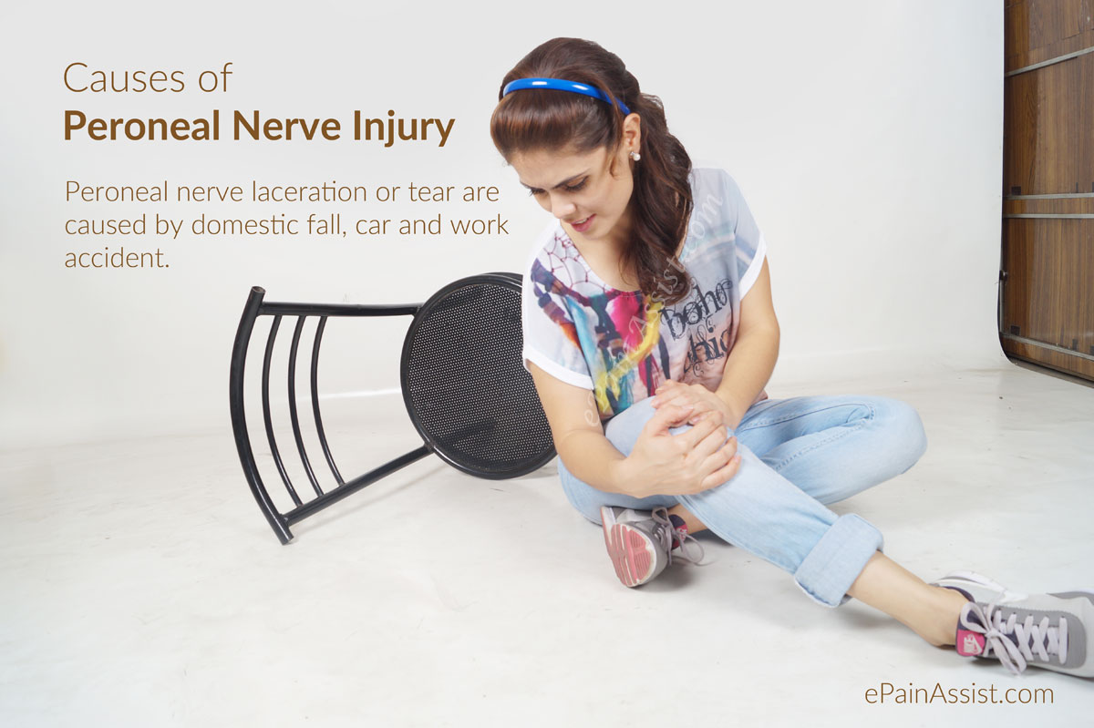 Causes of Peroneal Nerve Injury