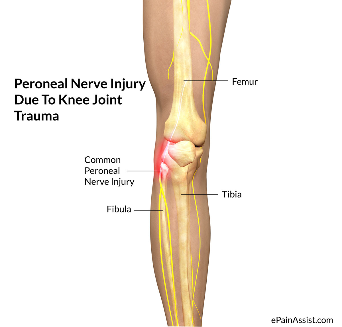 Peroneal Nerve Injury Treatment Causes Symptoms