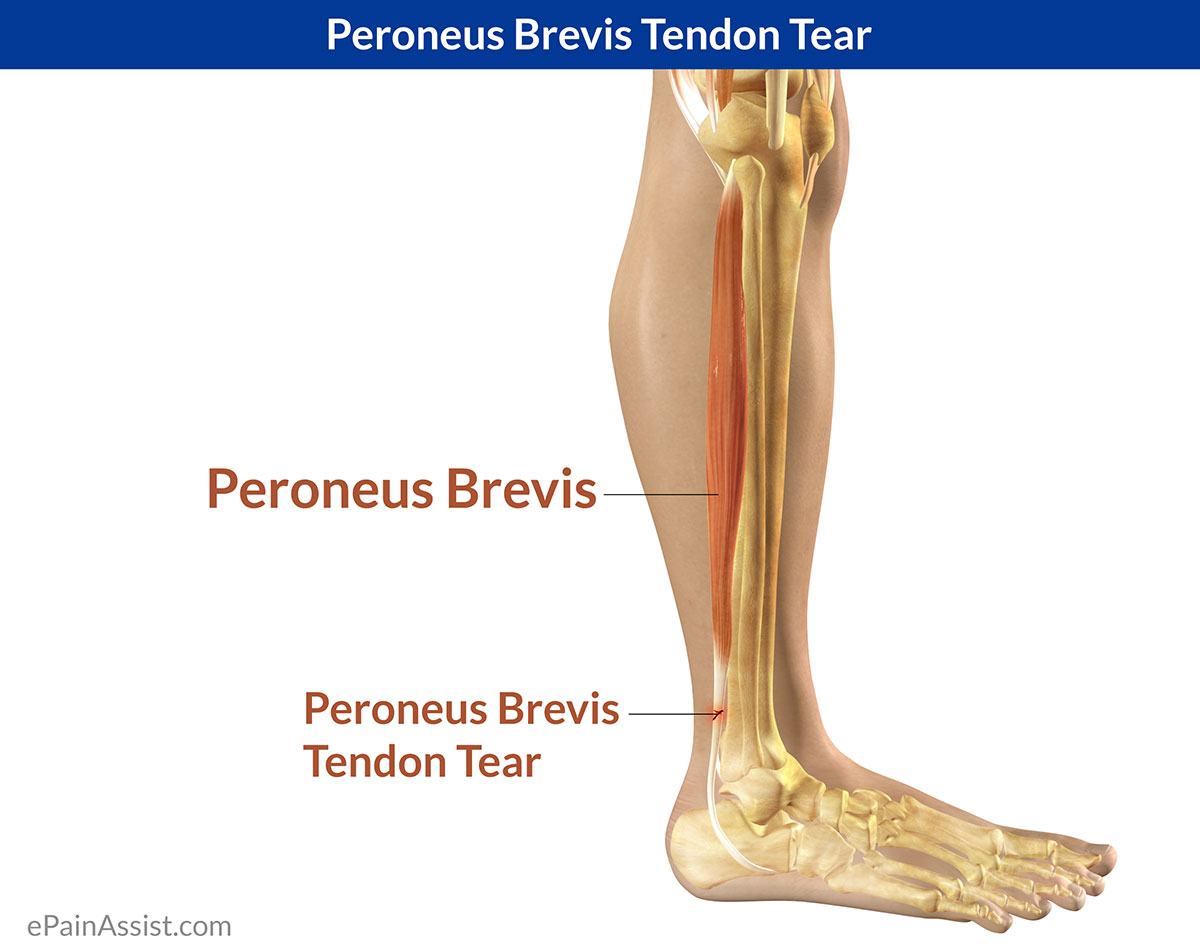 Peroneus Brevis Tendon Tear|Symptoms|Causes|Treatment|Exercises ...