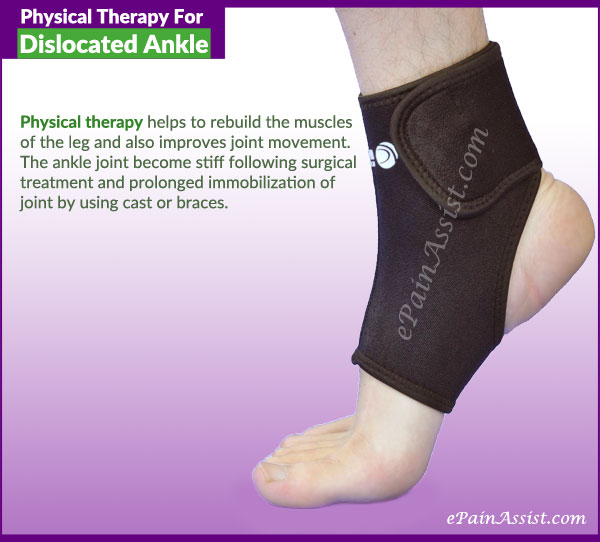 Physical Therapy For Dislocated Ankle or Ankle Dislocation