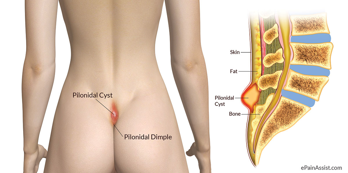 pilonidal cyst or pilonidal abscess|causes|risk factors|symptoms, Human Body