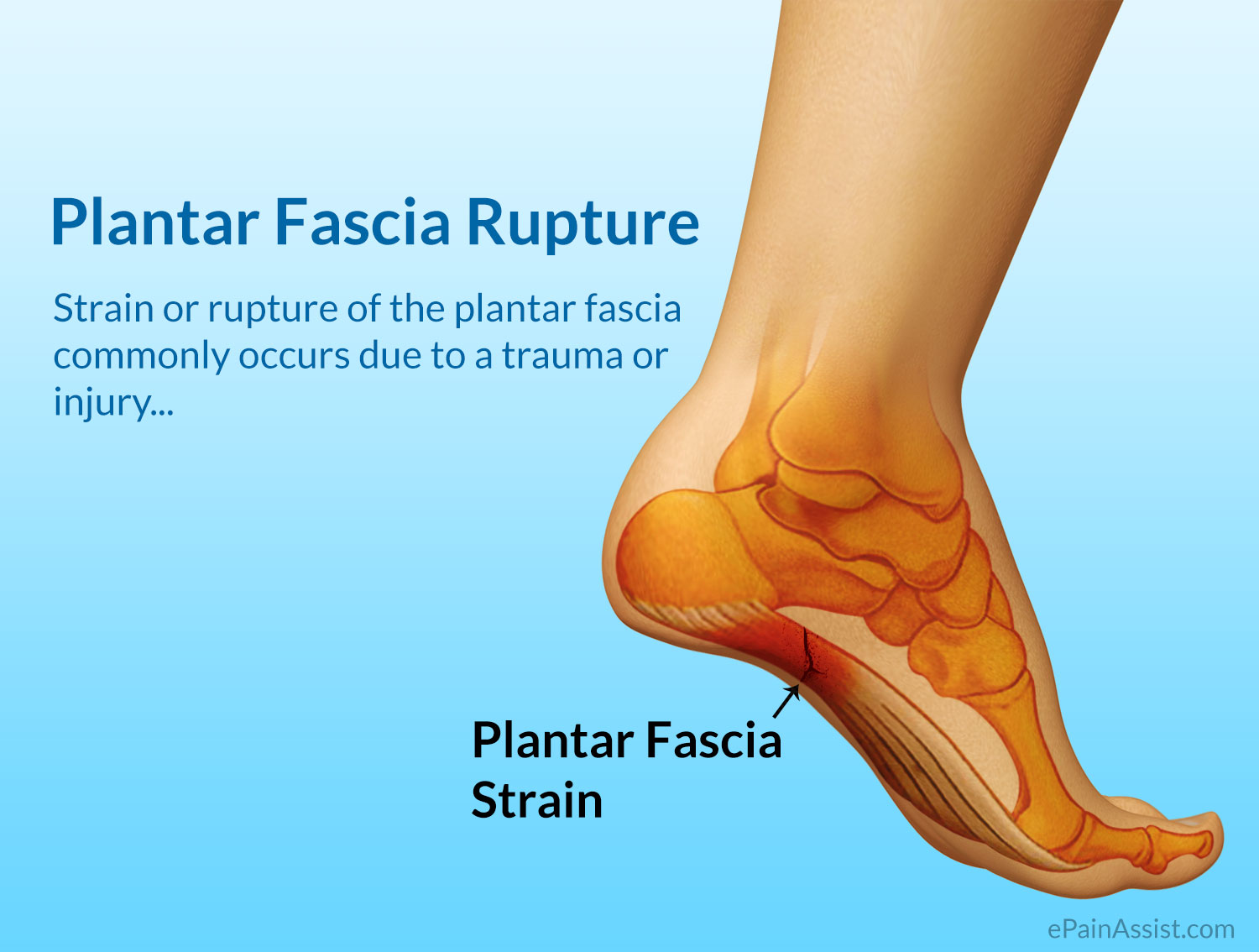 network facitis plantar behaviors jama lifestyle fasciitis fullarticle planter journals