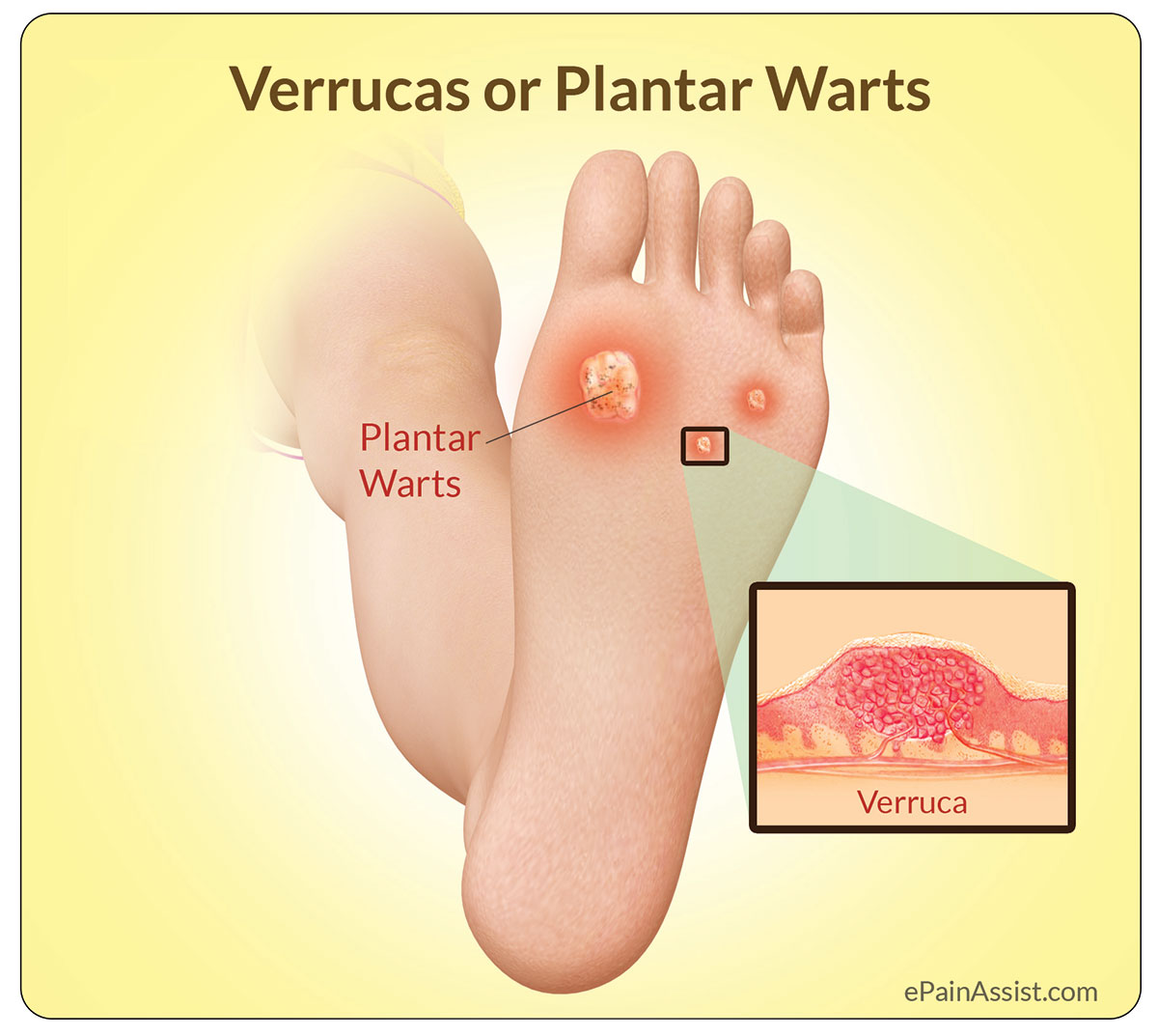 Common Warts: Learn About Symptoms, Treatment and Causes
