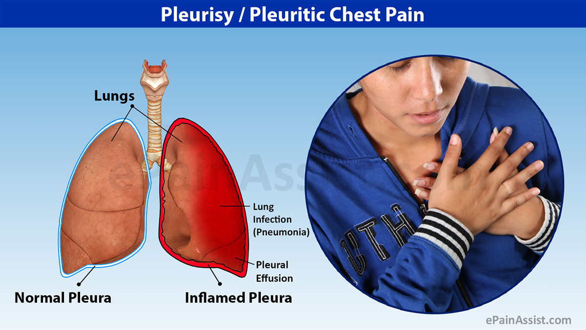 Causes and symptoms of pleurisy 25