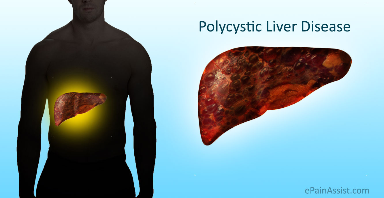 liver disease causes symptoms effects and treatments Nonalcoholic fatty liver disease (nafld) develops when the liver has difficulty breaking down fats, which causes a buildup in the liver tissue the cause is not related to alcohol the cause is.