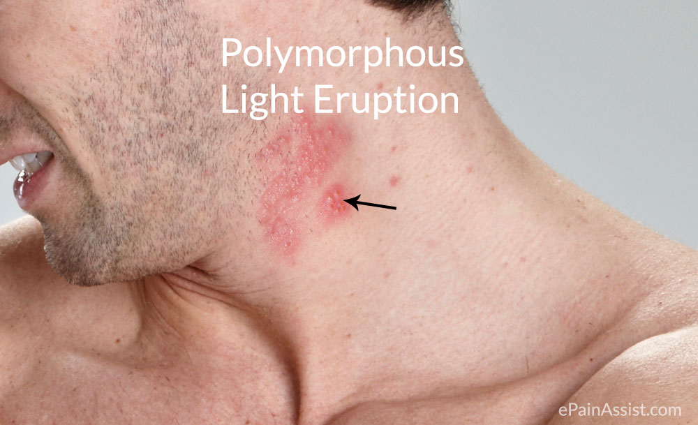 Polymorphous Light Eruption (PLE) or Polymorphic Light Eruption (PMLE)