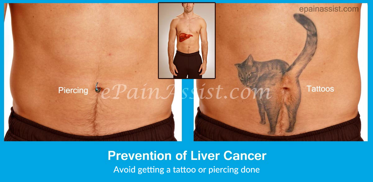 Prevention of Liver Cancer or Hepatic Cancer
