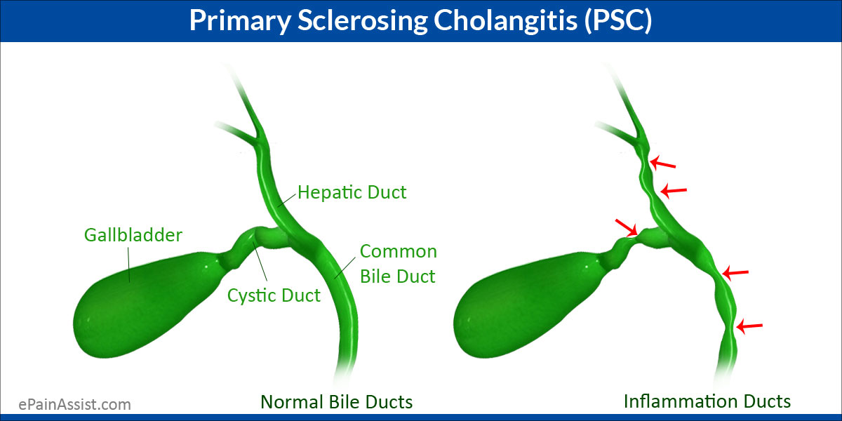 Primary Sclerosing Cholangitis Psc Treatment Home Remedies