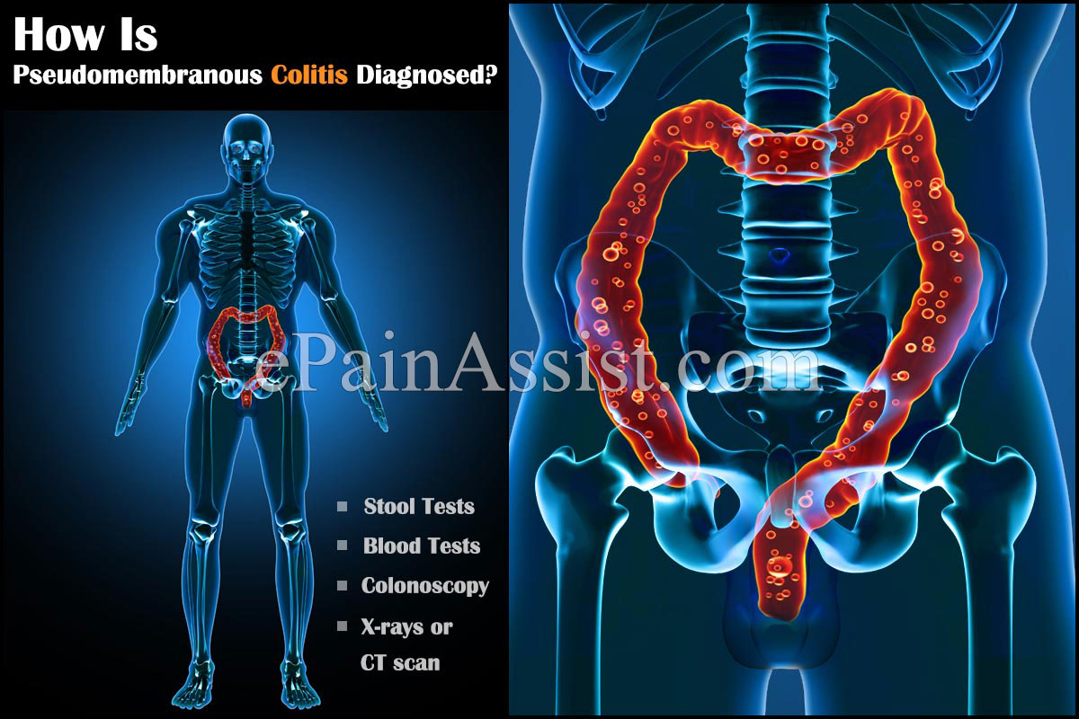 What is Pseudomembranous Colitis and How is it Treated?