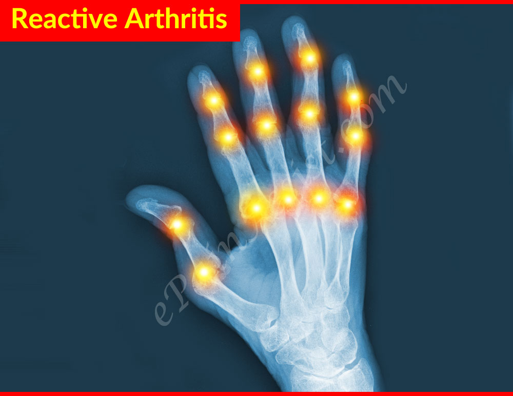 Medications Used to Treat Arthritis Symptoms Medications Used to Treat Arthritis Symptoms new photo
