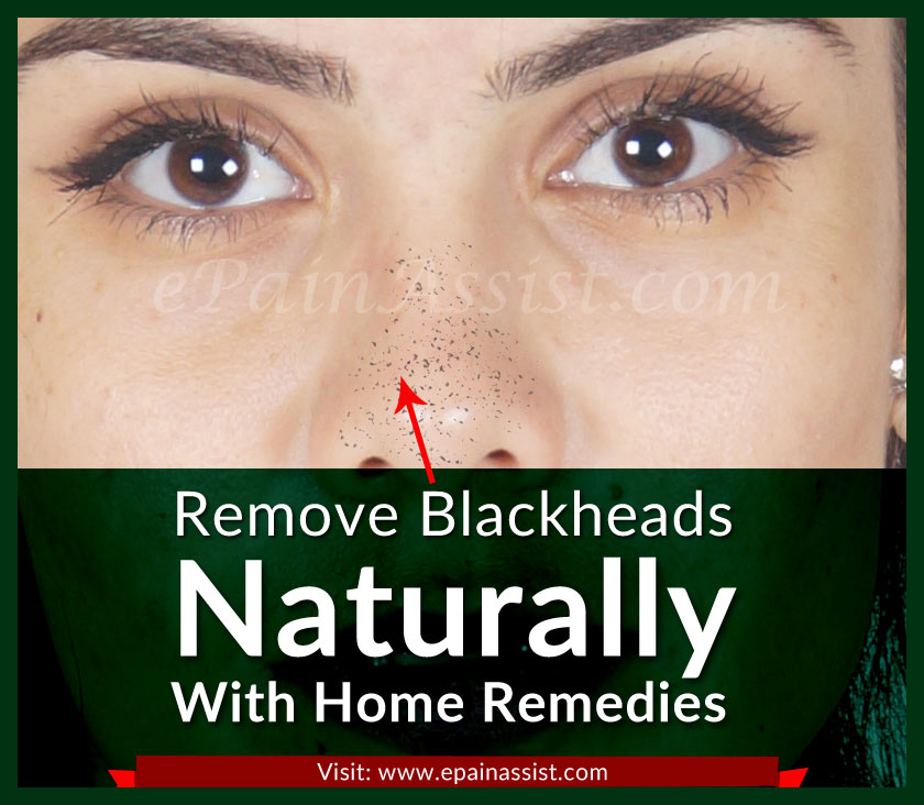 Remove Blackheads Naturally With These Home Remedies