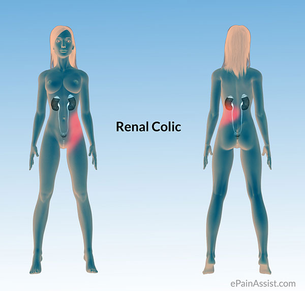 Colic Pain Or Colicky Pain Or Gut Rot