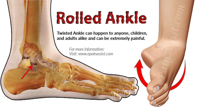 What Is Rolled Ankle Know Its Treatment Amp Recovery Period