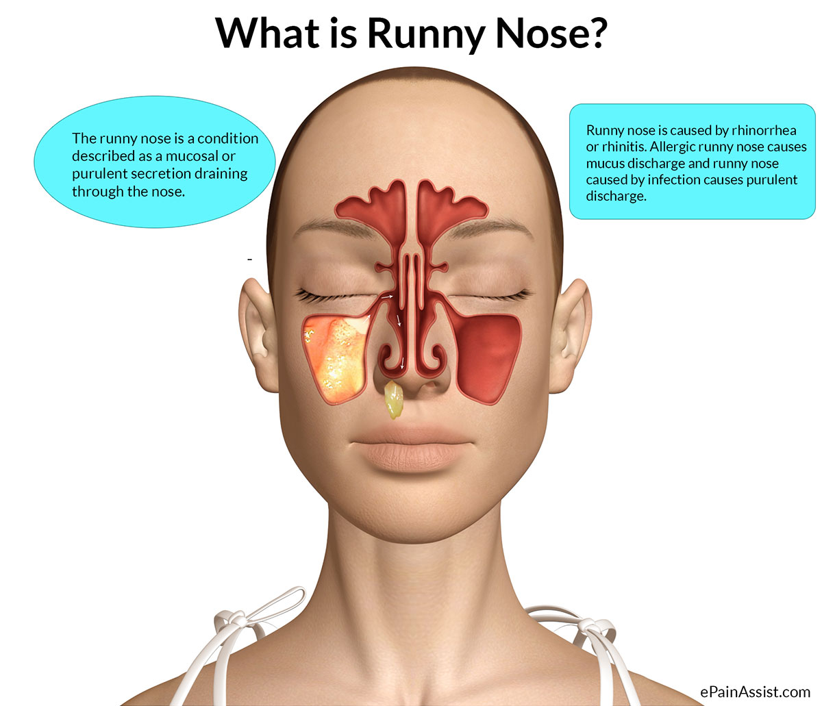 Runny Nose That Irritates Throat 69