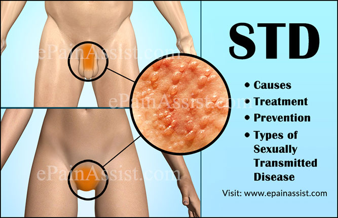 STD: Causes, Symptoms, Treatment, Prevention, Types of Sexually Transmitted Disease