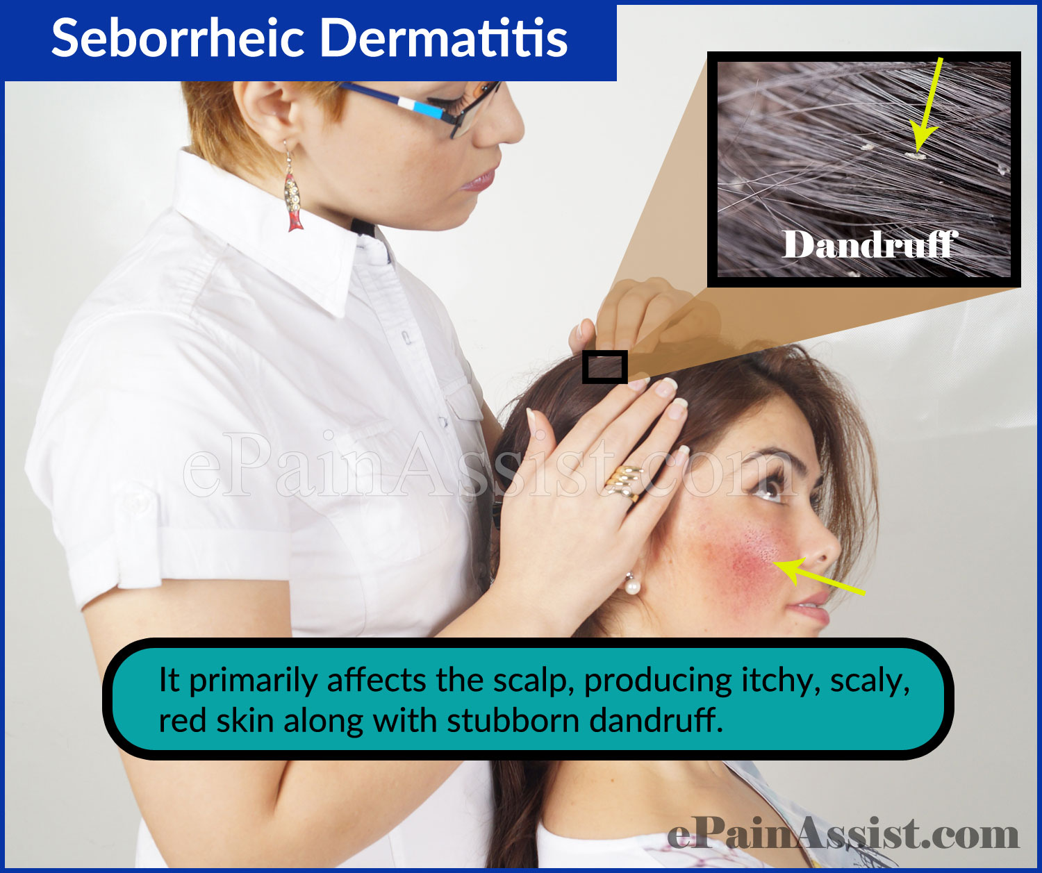 Causes of Seborrheic Dermatitis or Seborrheic Eczema