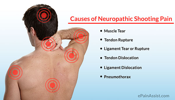 Causes Of Neuropathic Shooting Pain In Face Neck Back