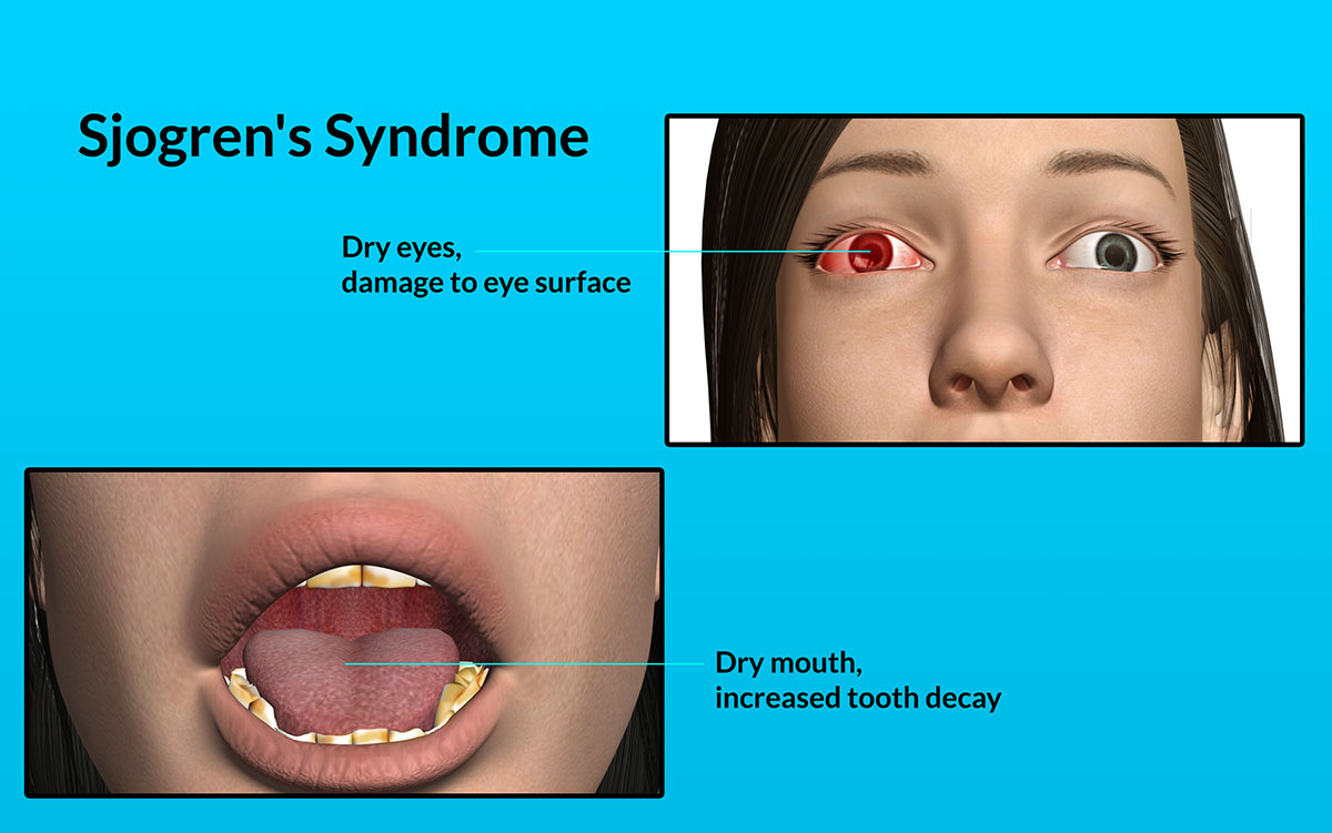 Sjogrens syndrome and dry mouth Sjogrens syndrome and dry mouth new images