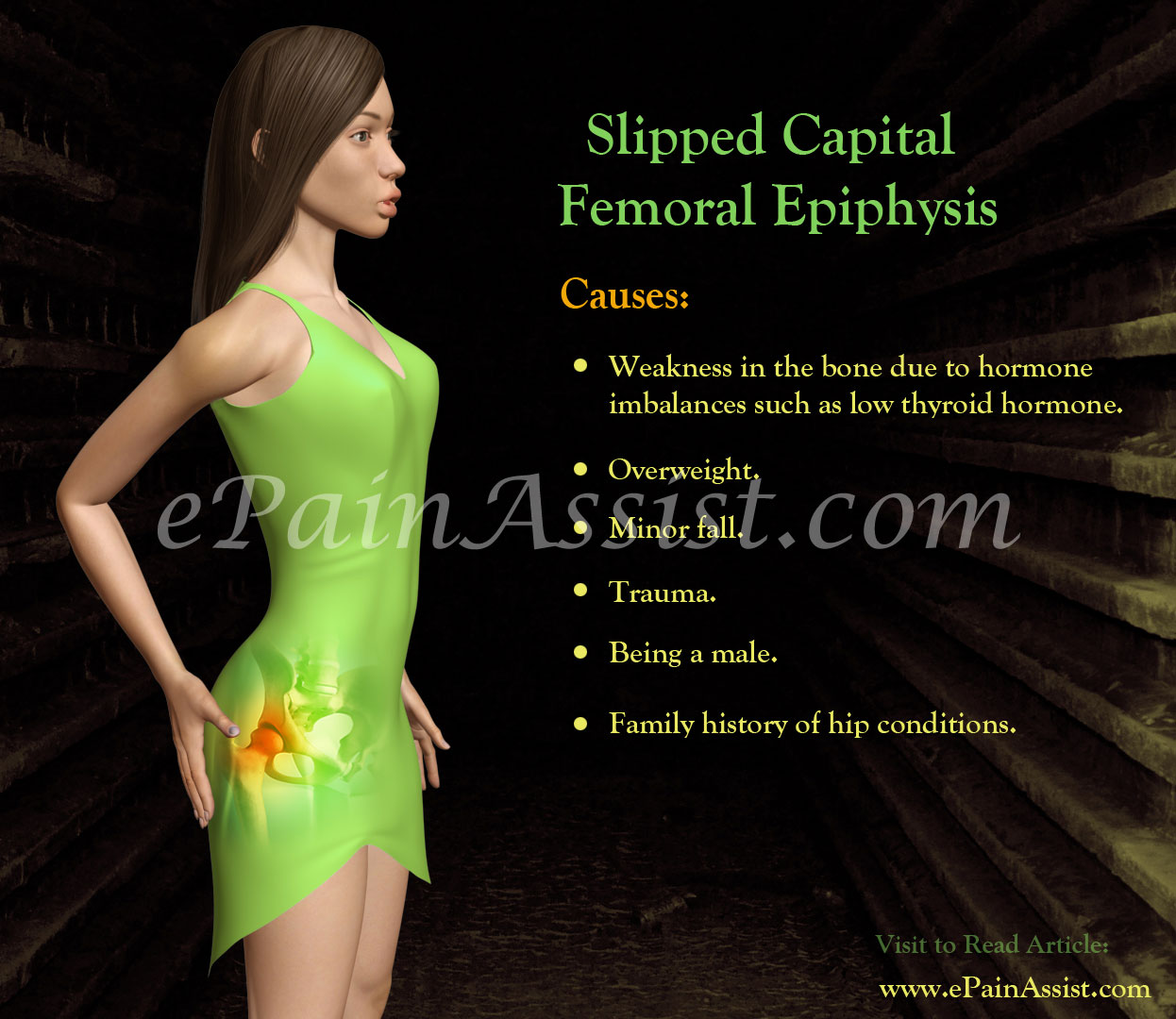 Causes and Risk Factors of Slipped Capital Femoral Epiphysis (SCFE)
