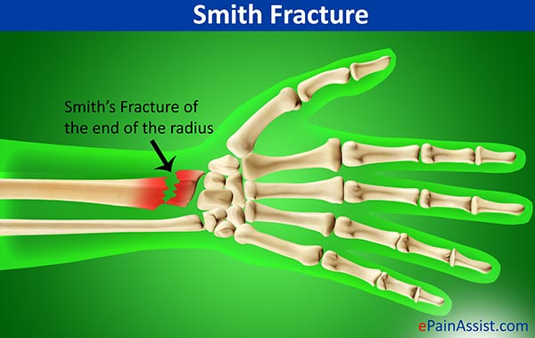 Smith Fracture or Reverse Colles Fracture