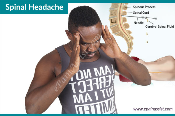 Spinal Headache or Post-Lumbar Puncture Headache
