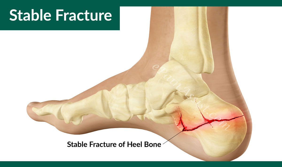 Stable Fracture Of The Calcaneus Or Heel Bone