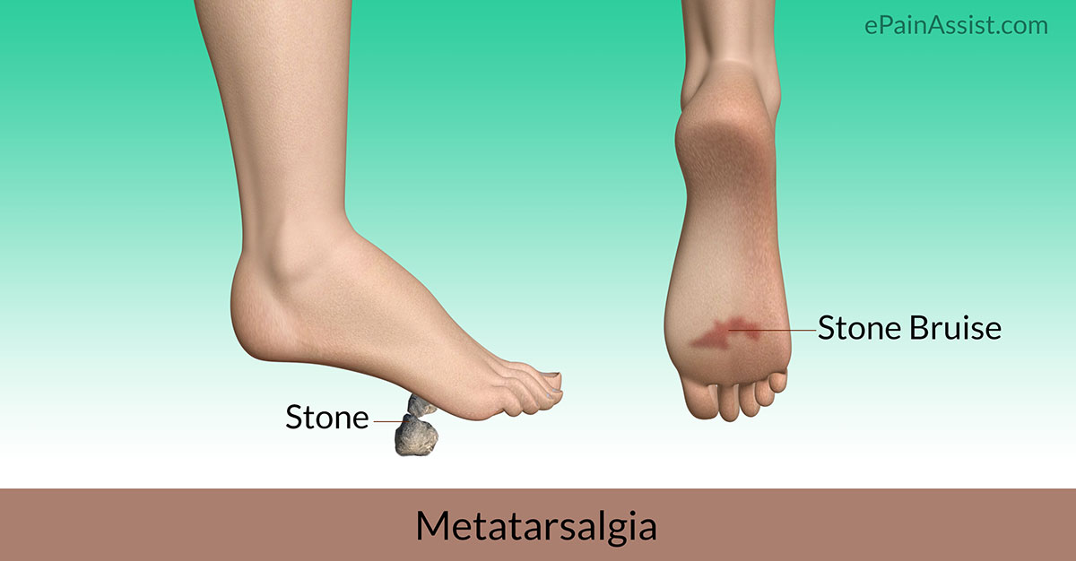 Heel To Toe Treat Your Feet >> Stone Bruise Treatment Symptoms Causes