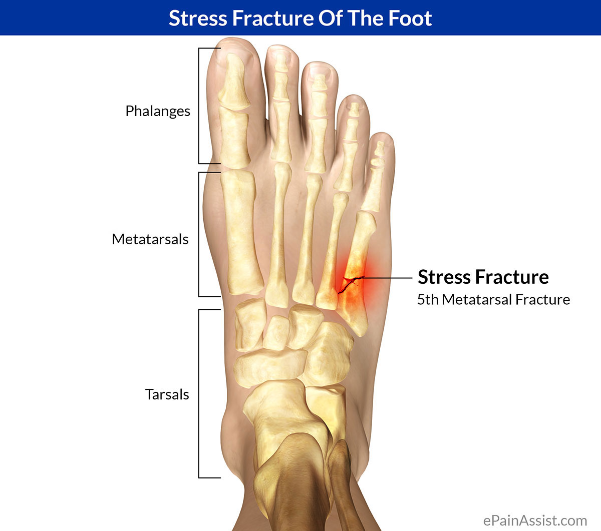 Stress Fracture of the Foot|Causes|Symptoms|Treatment
