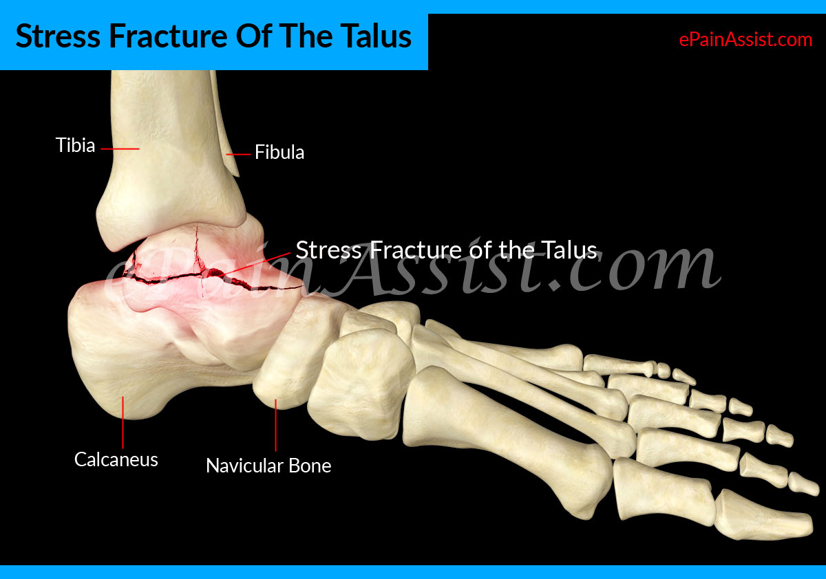 Stress Fracture Of The Talus: Causes, - 117.7KB