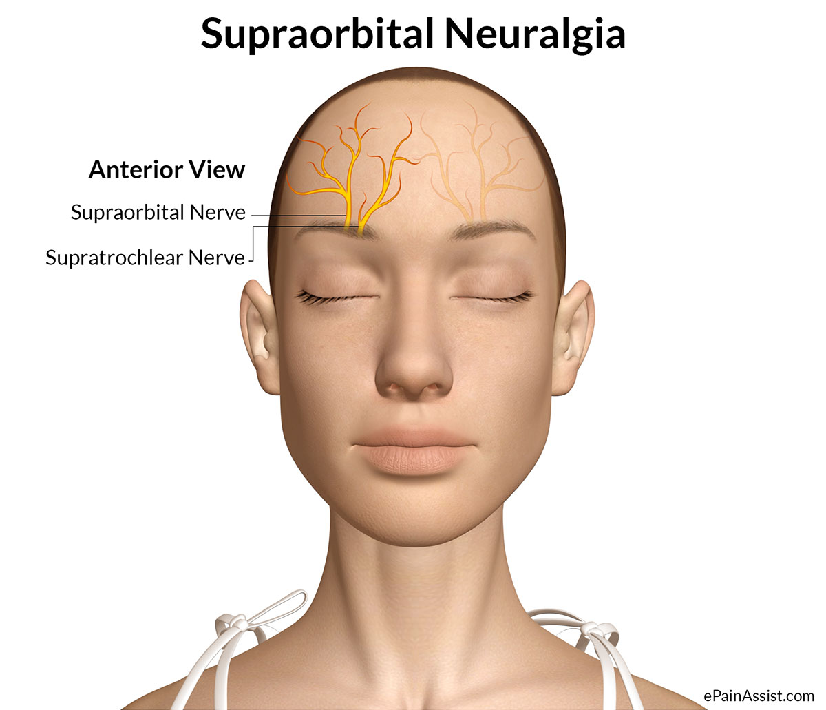 Inflamed facial nerve headache