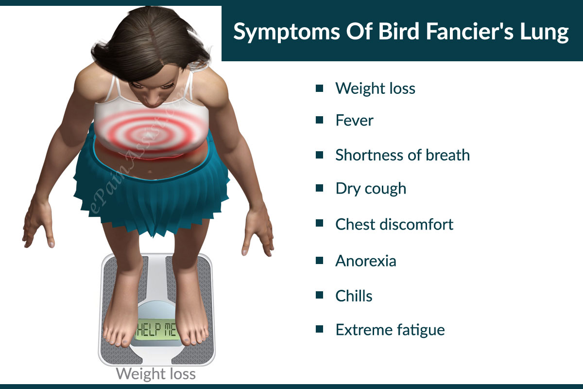 Symptoms Of Bird Fancier's Lung
