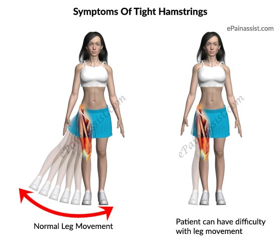 Signs & Symptoms Of Tight Hamstrings