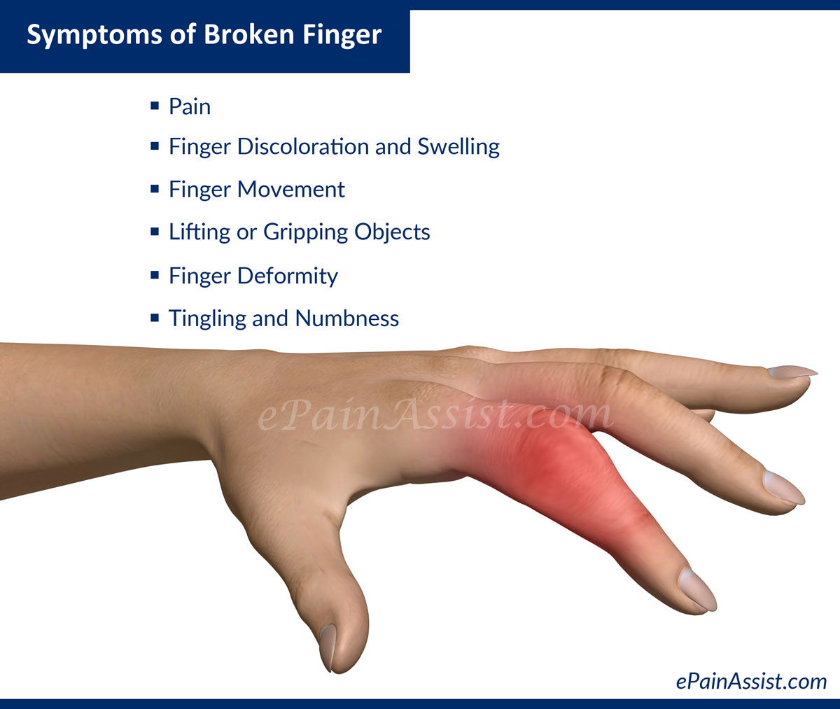 Symptoms of Broken Finger or Fractured Finger