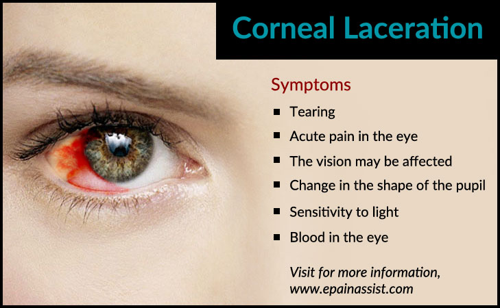 Symptoms of Corneal Laceration