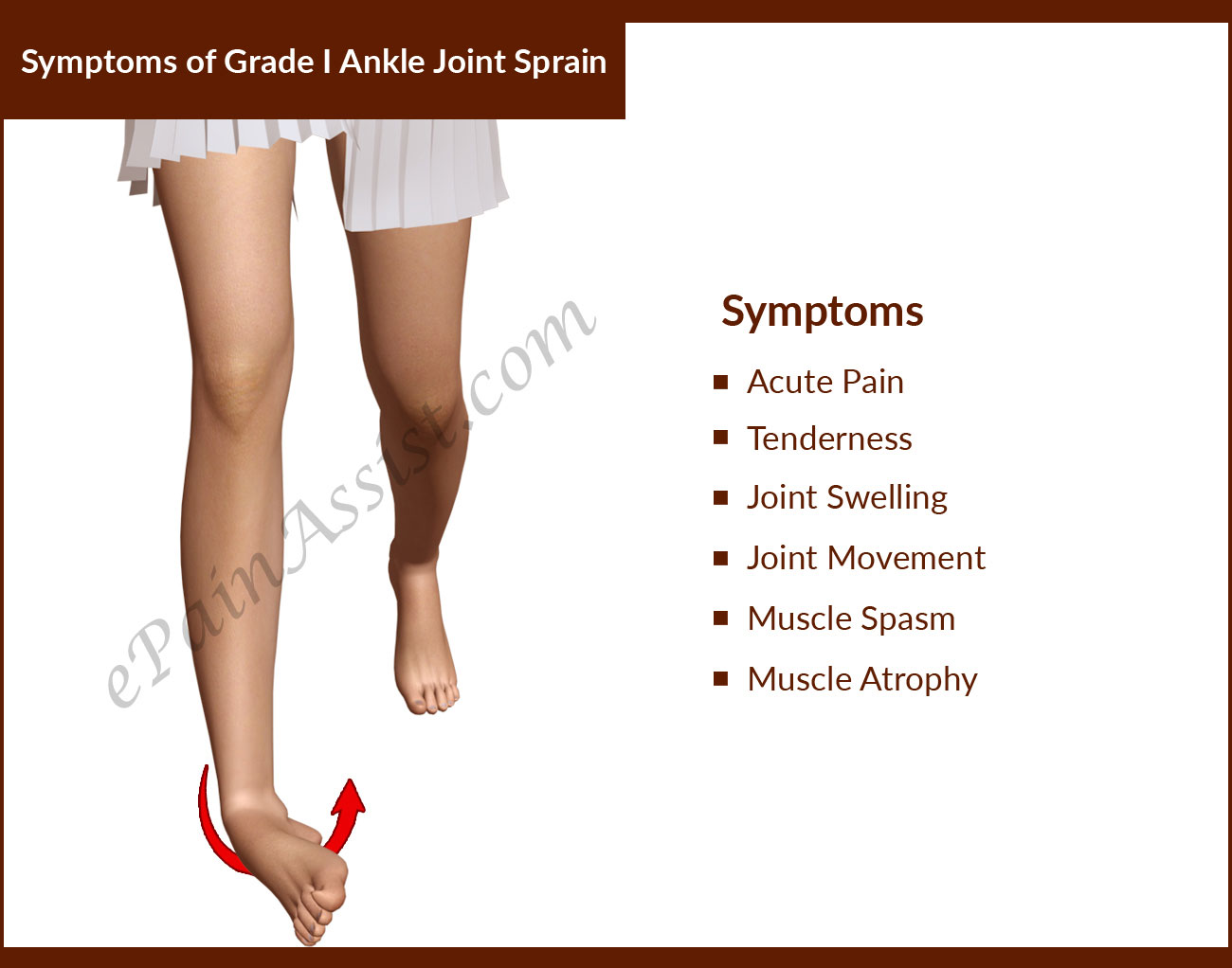 Symptoms of Grade I Ankle Joint Sprain