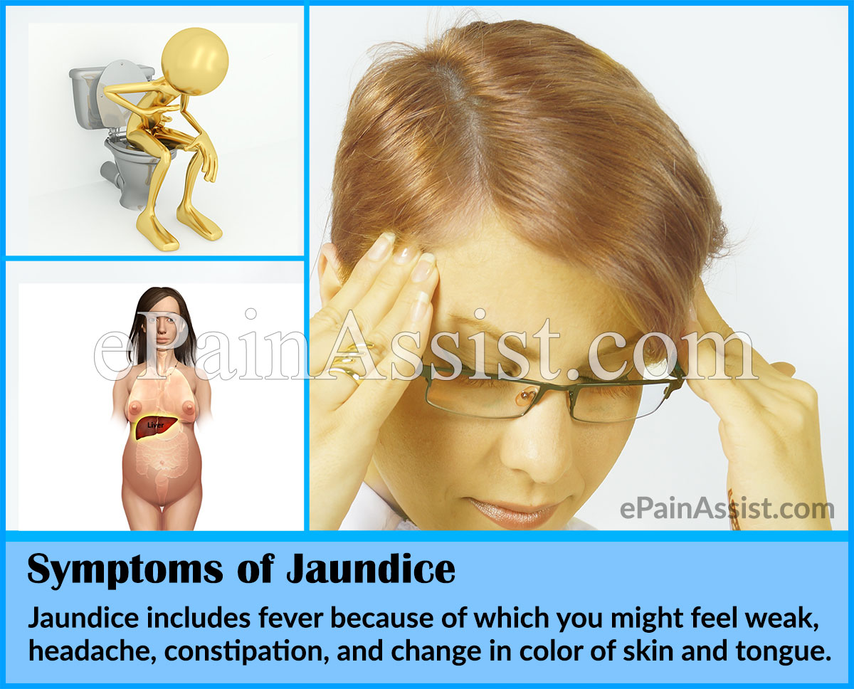 Jaundice nursing diagnosis for adults